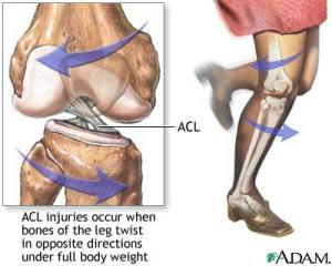 ACL: Anatomy and Mechanism of Injury
